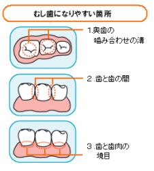 なりやすい場所虫歯に.png