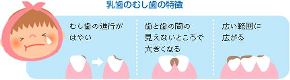 乳歯の虫歯.jpg