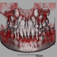 乳歯CT.JPG