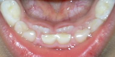 永久歯.JPG