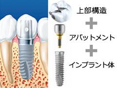 implant01_1.jpg