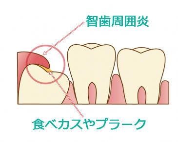 智歯周囲炎.jpg