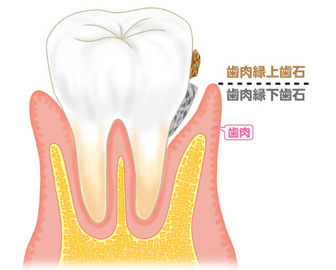 歯石.jpg